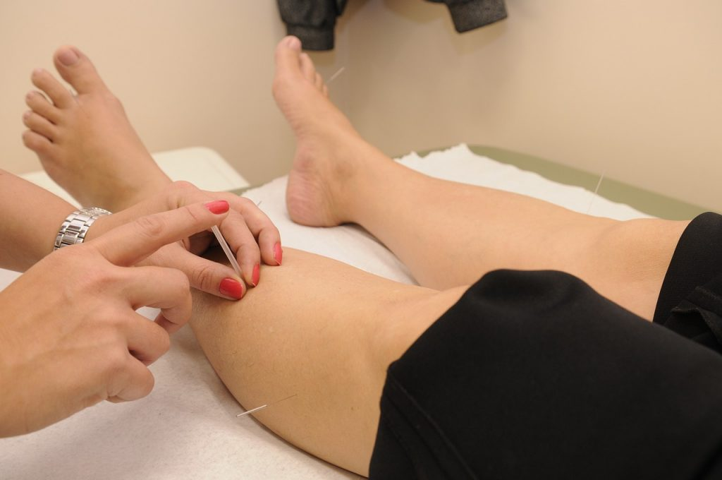 Natural remedies for arthritis-acupuncture